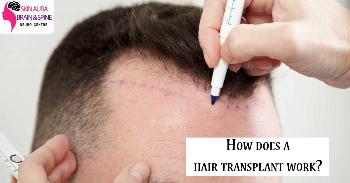 hair transplant work