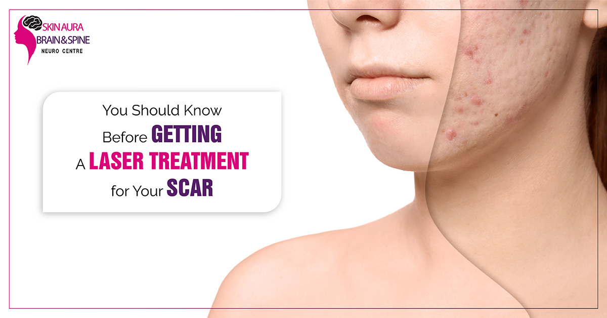 laser treatment for your scar