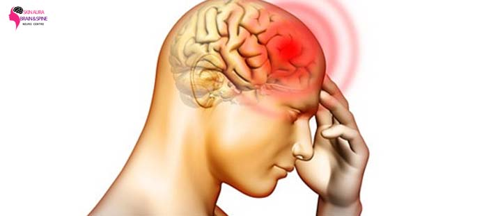 brain hemorrhage treatment in gurgaon