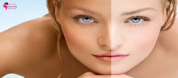 patchy skin best doctor for pigmentation in gurgaon