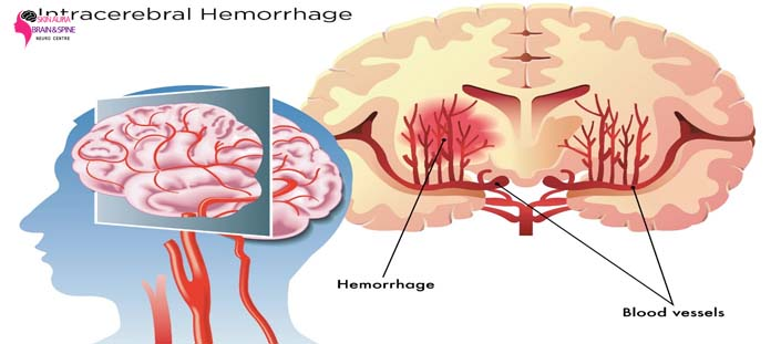 best brain hemorrhage treatment gurgaon