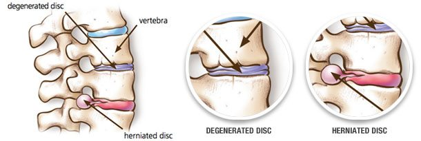 disc prolapse treatment in gurgaon