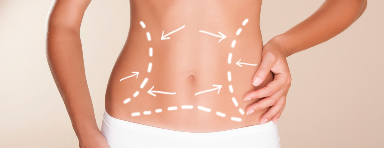Coolsculpting/Cryolipolysis Cost in Gurgaon