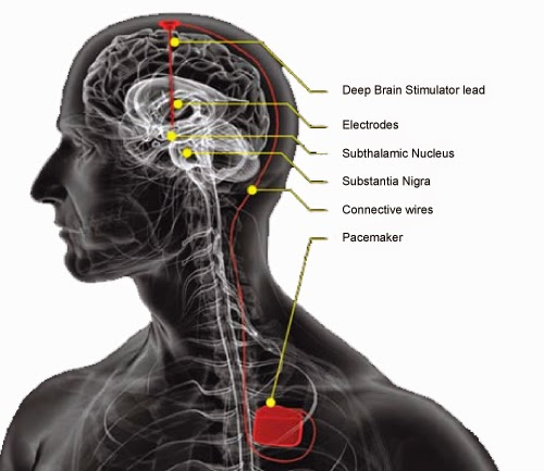 DEEP BRAIN STIMULATION SURGERY in gurgaon title=