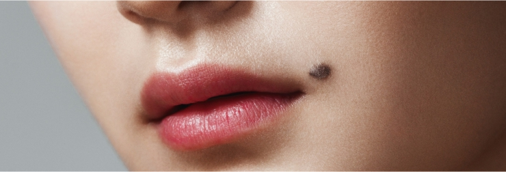 Mole Warts And Skin Tags Removal Treatment Clinic In Gurgaon