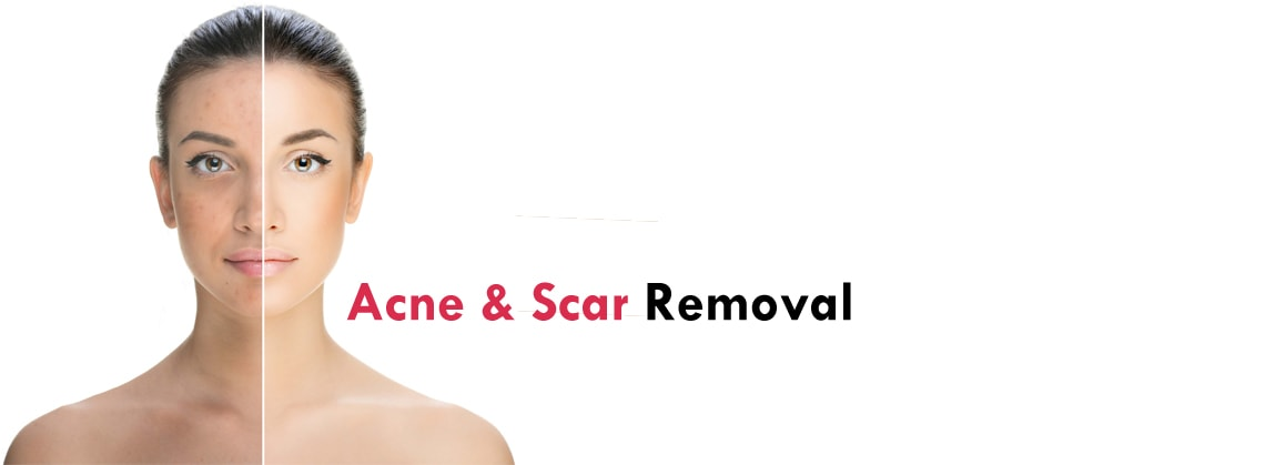 Acne & Scar Laser Treatment Clinic Gurgaon