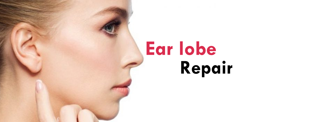 Ear Lobe Correction Clinic in Gurgaon