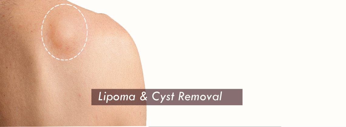 Lipoma Cyst Removal Surgery Clinic in Gurgaon