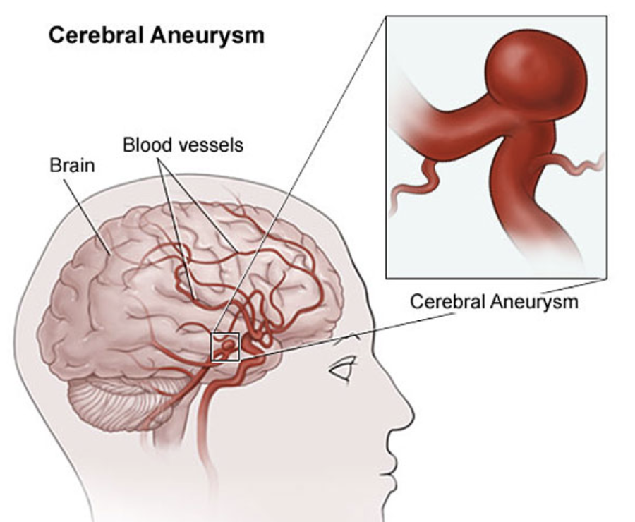 Brain Aneurysm Repair Gurgaon