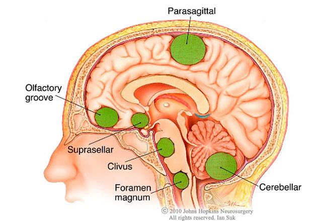 Best Brain Tumor Surgery hospital Gurgaon