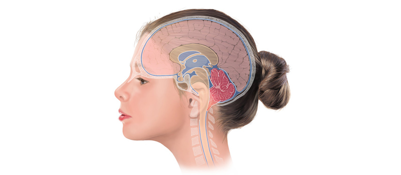 Pediatric Neurology Disorder
