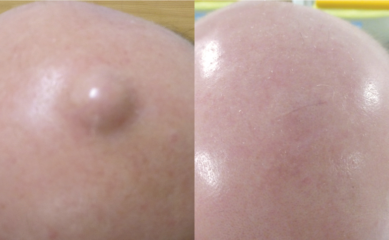 Lipoma Cyst Removal Surgery - Sebaceous Cyst Excision Gurgaon