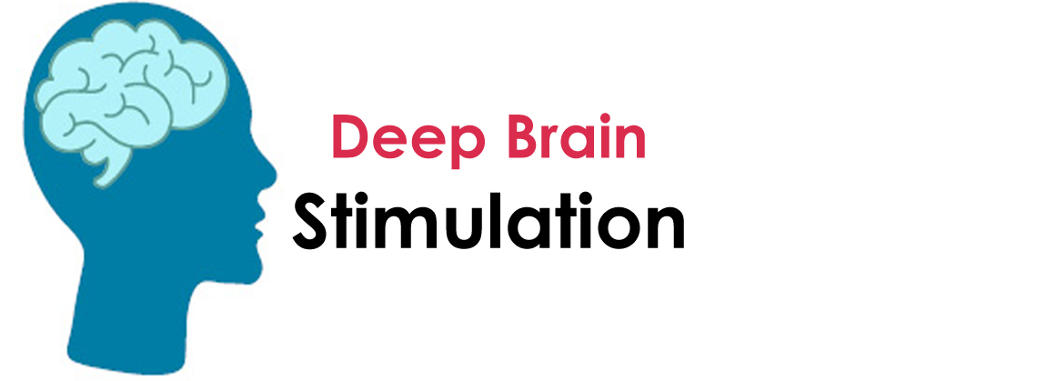 Deep Brain Stimulation (DBS) Doctors in Gurgaon