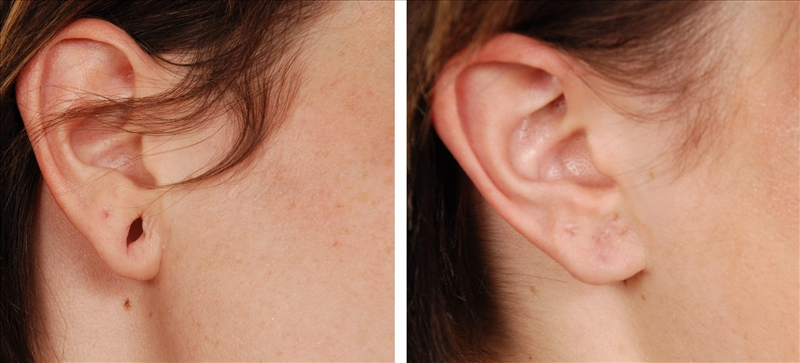 Ear Lobe Treatment in Gurgaon