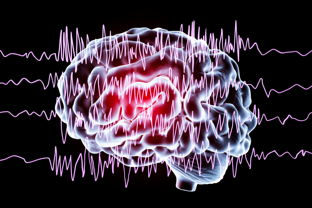 https://sabclinic.com/images/epilepsy-treatment-in-gurgaon.png