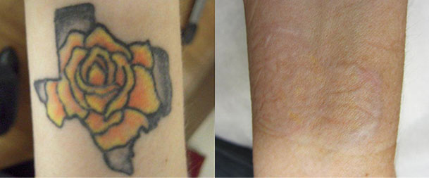 Tattoo Removal in Gurgaon