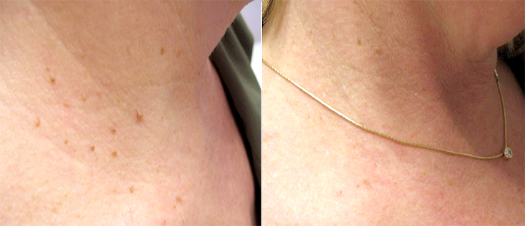 skin tag removal treatment in Gurgaon
