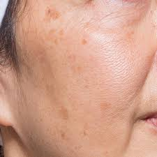 blemishes pigmentation treatment in gurgaon