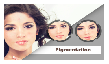 uneven skin tone, blotches treatment in gurgaon