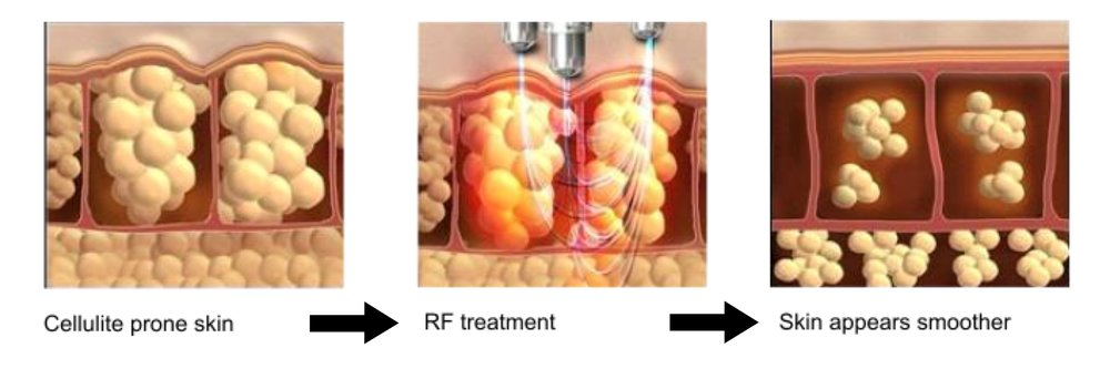 Radiofrequency Lipolysis Treatment Gurgaon