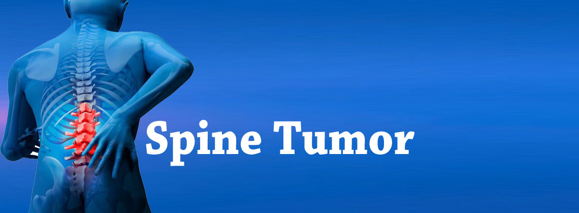 Spinal Tumor Surgery Hospital in Gurgaon