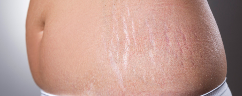 Stretch Marks Treatment Gurgaon