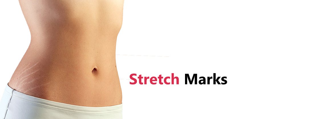 Stretch Marks Removal Laser Treatment in Gurgaon