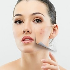 acne scar removal treatment in gurgaon