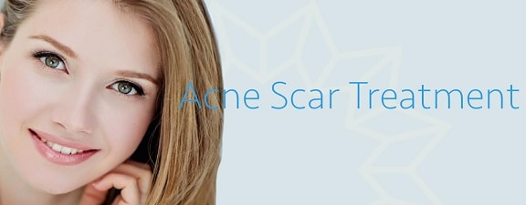 acne scar reduction treatment in gurgaon