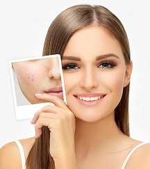 acne scars laser treatment in gurgaon