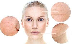 Treatment of Acne Scar Gurgaon